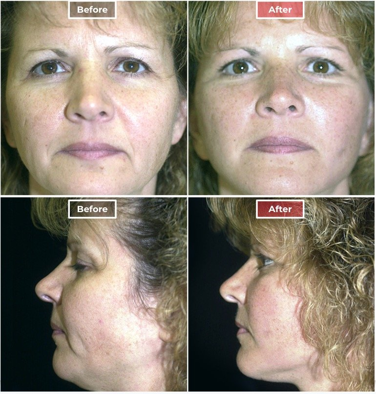 Facelift Surgery   Neck & Face Lifts  before and after -4