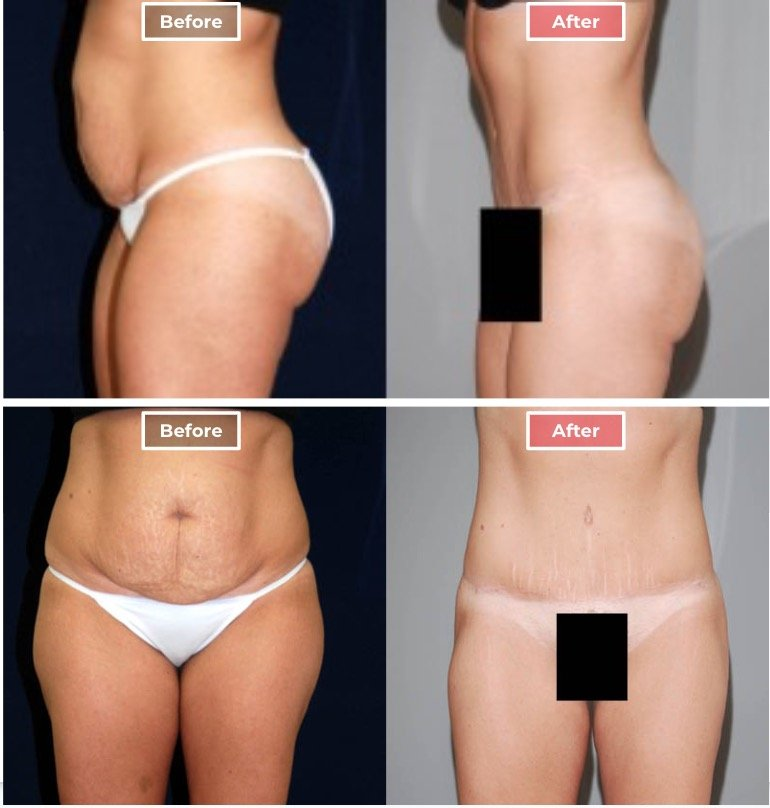 Tummy Tuck Surgery before and after - 8