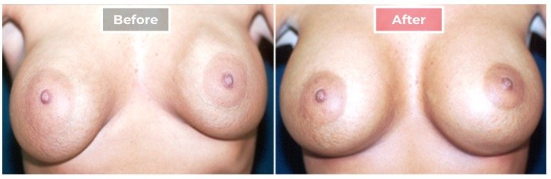 Breast Augmentation Revision - Before and After - 4