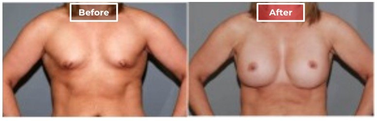 Breast Augmentation - before and after - 12