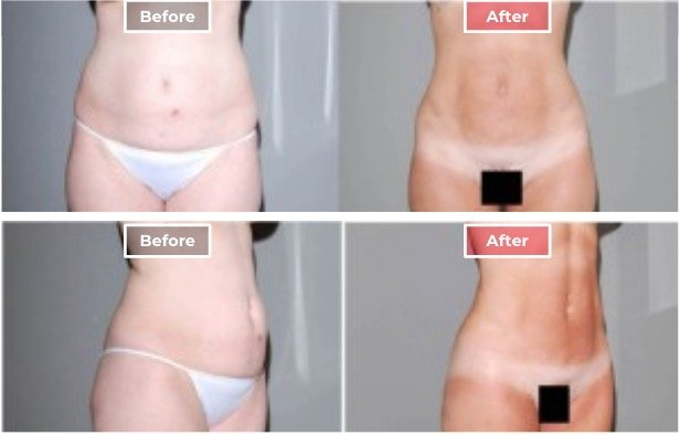 Liposuction treament before and after - 3