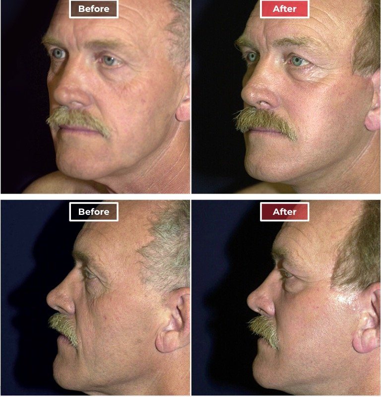 Male Eyelid Surgery before and after -1