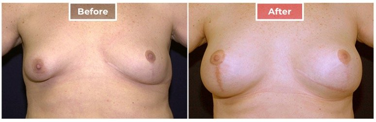 Breast Asymmetry Correction - Before and After - 2