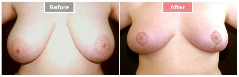 Breast Reduction - Before and After - 3