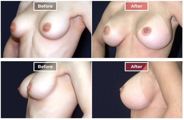 breast-augmentation-revision