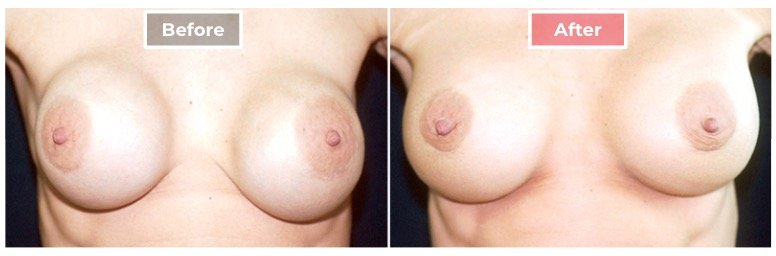 Breast Augmentation Revision - Before and After - 3