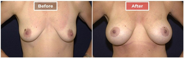Breast Augmentation - before and after - 10