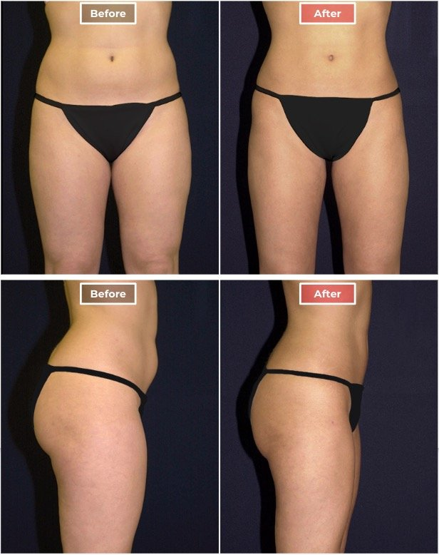 Liposuction treament before and after - 2