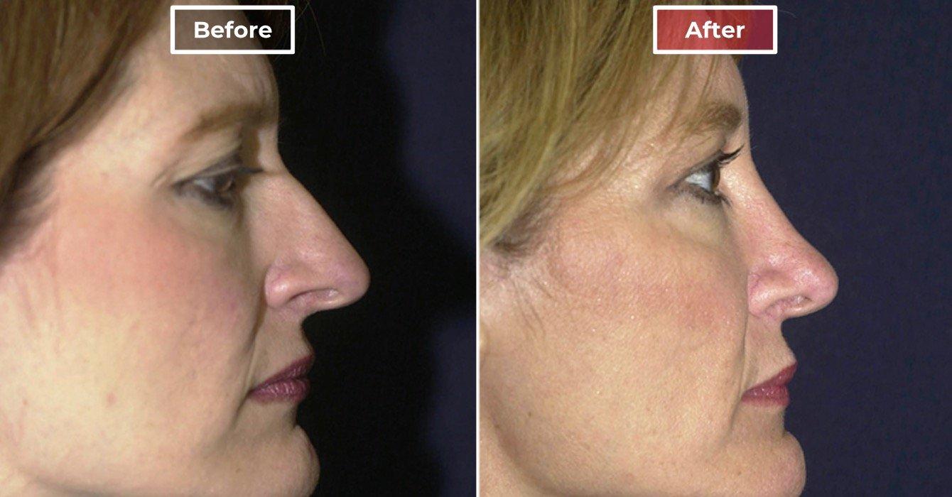 Nose Surgery Rhinoplasty before and after -2
