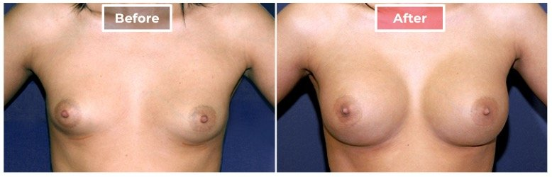Breast Augmentation - before and after - 8
