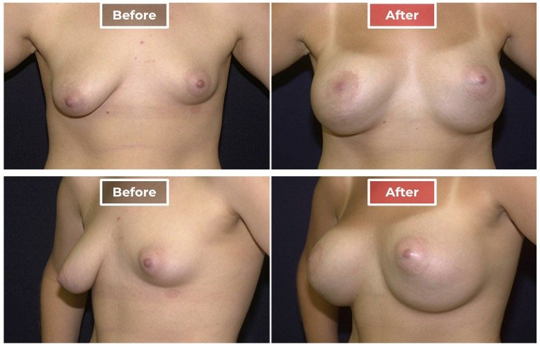 Breast Asymmetry Correction - Before and After - 3
