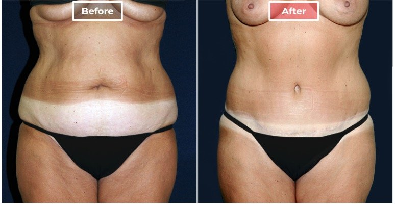 Tummy Tuck Surgery before and after - 2