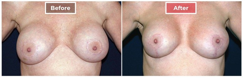 Breast Augmentation Revision - Before and After - 5