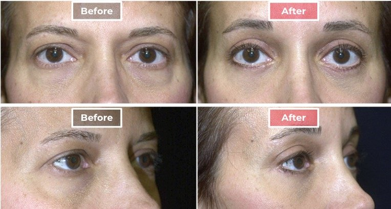 Cosmetic Eyelid Surgery before and after - 2