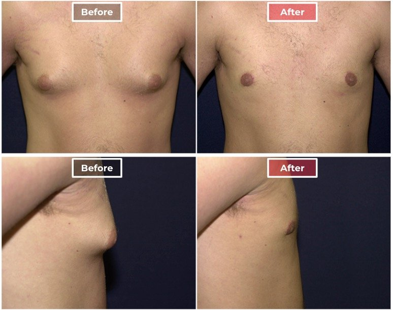 Male Breast Reduction I Gynecomastia before and after