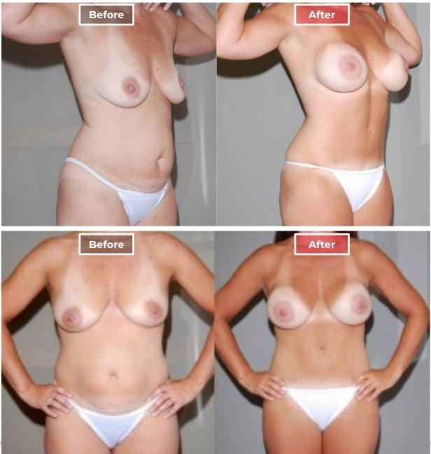 Mommy Makeover Surgery  before and after - 8