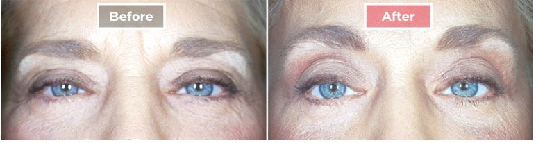 Cosmetic Eyelid Surgery before and after - 1