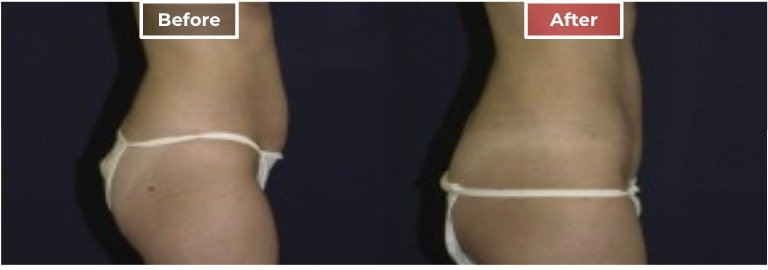 Tummy Tuck Surgery before and after - 5