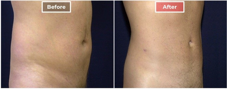 Liposuction - Male before and after