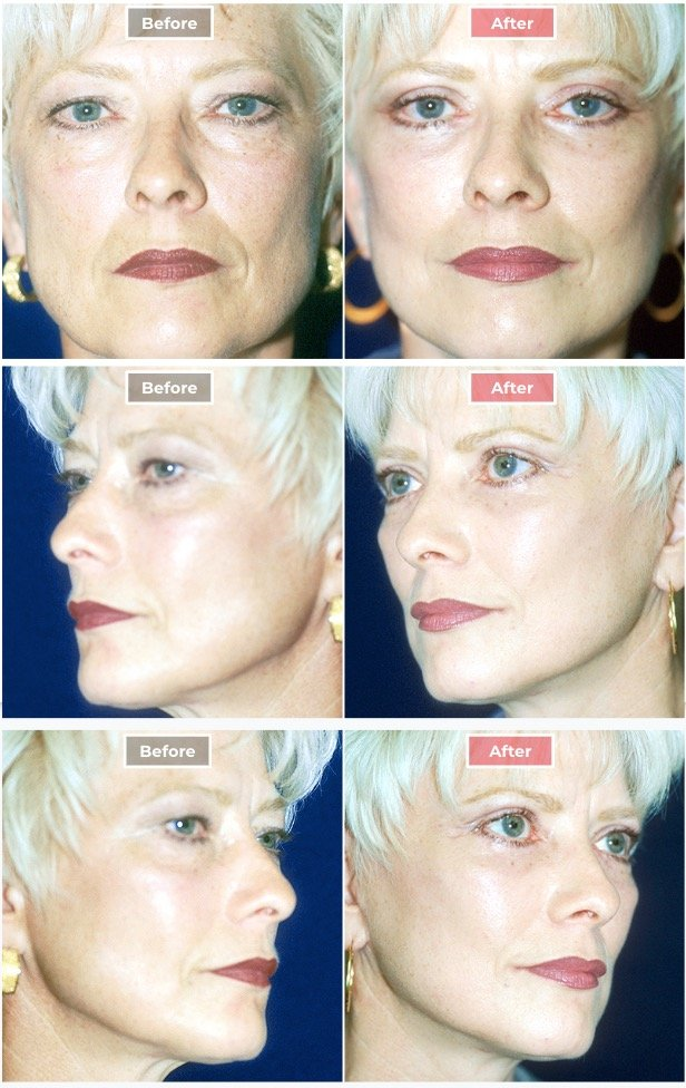 Facelift Surgery   Neck & Face Lifts  before and after -2