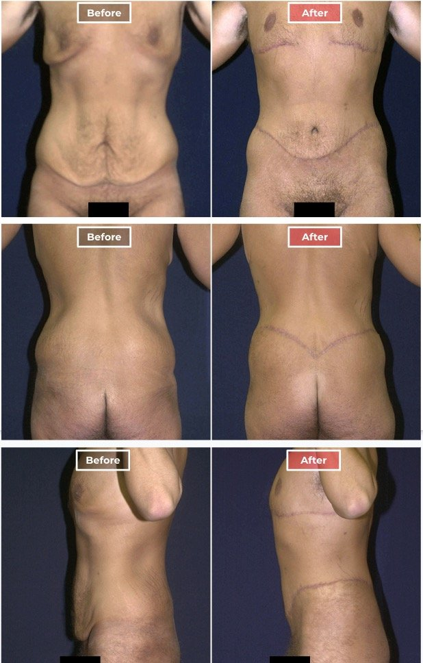 Body Lift - Male before and after