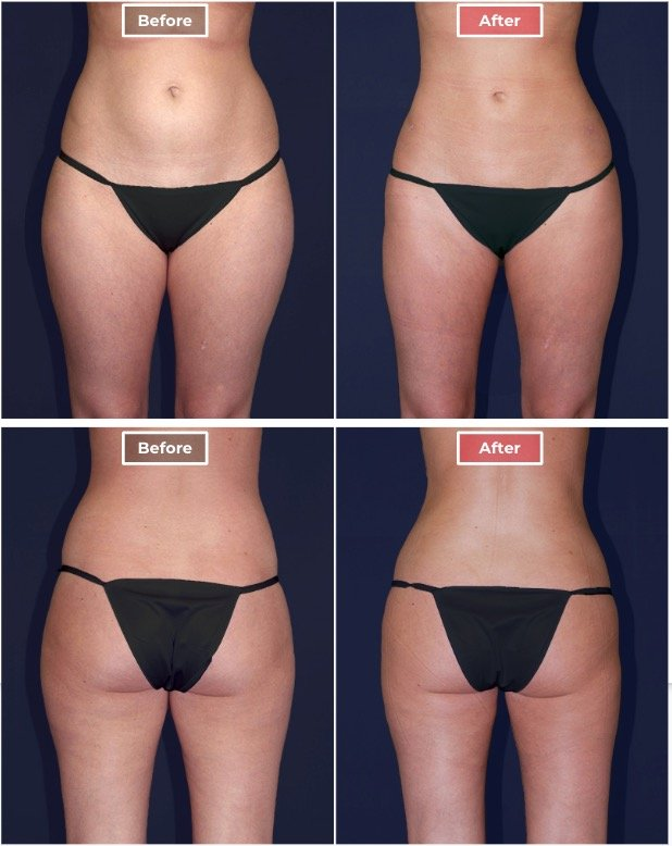 Liposuction treament before and after - 1