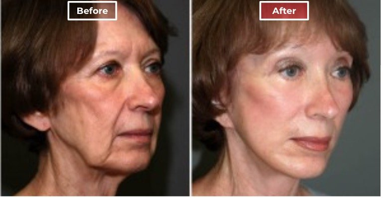 Facelift Surgery   Neck & Face Lifts  before and after -3