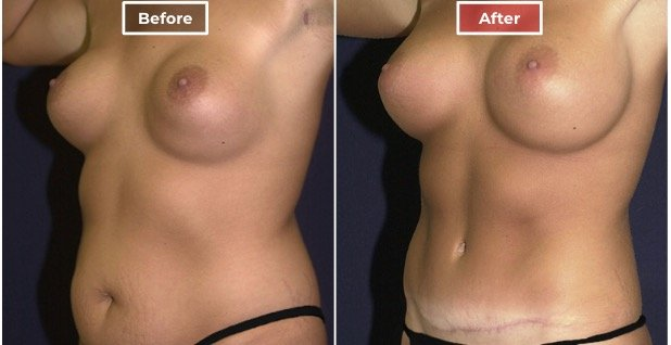 Mommy Makeover Surgery  before and after - 5
