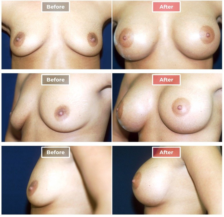 Breast Augmentation - before and after - 1