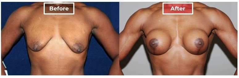Weight Training Breast Augmentation - Before and After