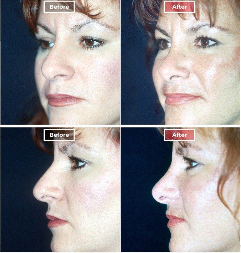 Nose Surgery Rhinoplasty before and after