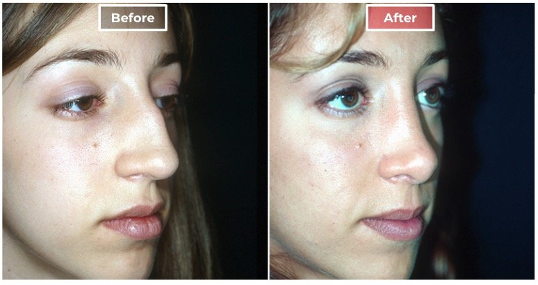 Nose Surgery Rhinoplasty before and after -1