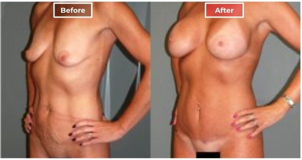 Mommy Makeover Surgery  before and after - 9
