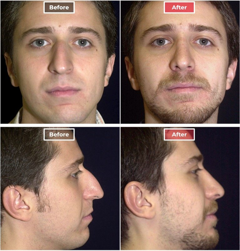 Male Rhinoplasty Surgery before and after