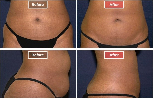 Liposuction treament before and after - 4