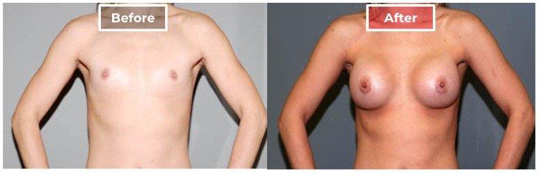 Breast Augmentation - before and after - 11