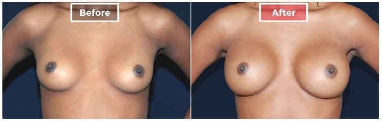 Breast Augmentation - before and after - 6