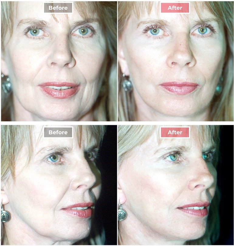 Facelift Surgery   Neck & Face Lifts  before and after -1