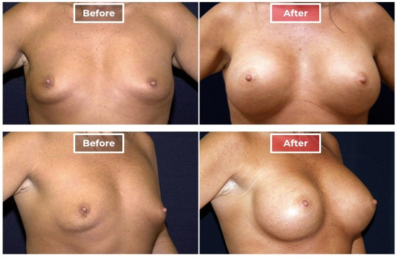 Breast Augmentation - before and after - 4