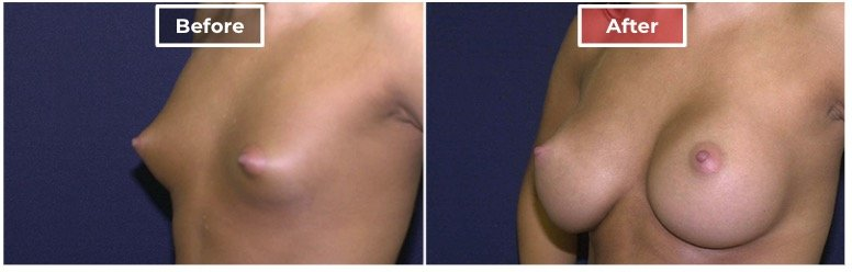 Breast Augmentation - before and after - 5
