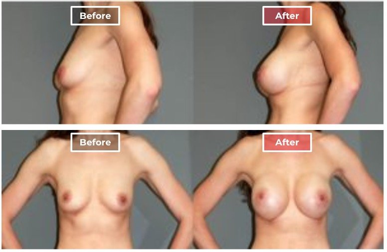 Breast Augmentation - before and after - 15