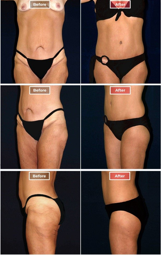 Body Lift After Weight Loss
