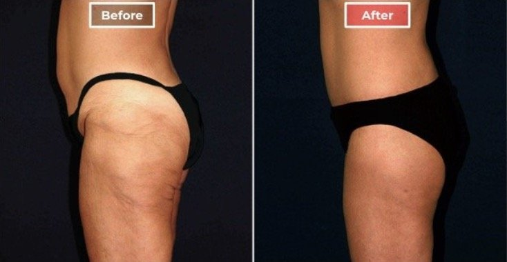 body-lift-after-weight-loss