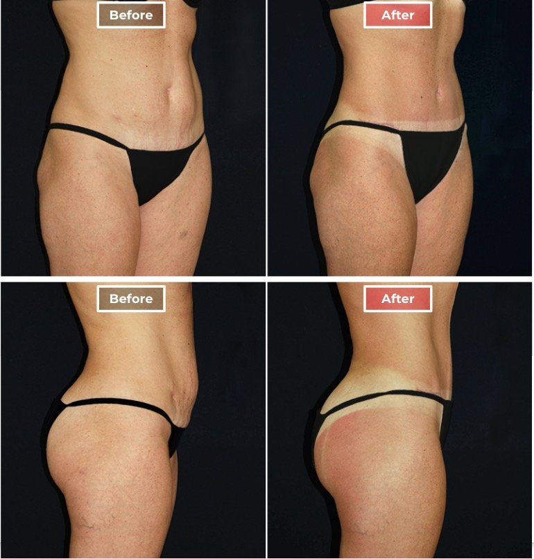 Tummy Tuck Surgery before and after - 3