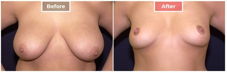 Breast Reduction - Before and After - 6