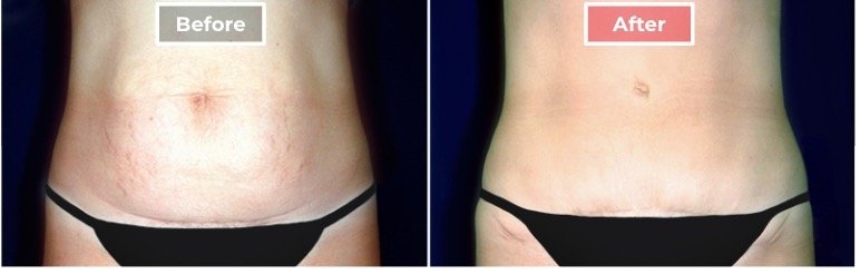 Tummy Tuck Surgery before and after - 1
