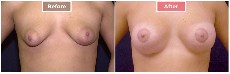 Breast Asymmetry Correction - Before and After - 1