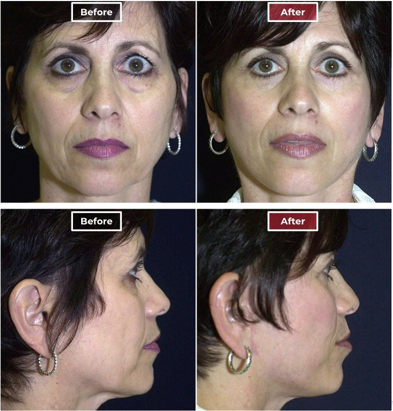 Facelift Surgery   Neck & Face Lifts  before and after -5