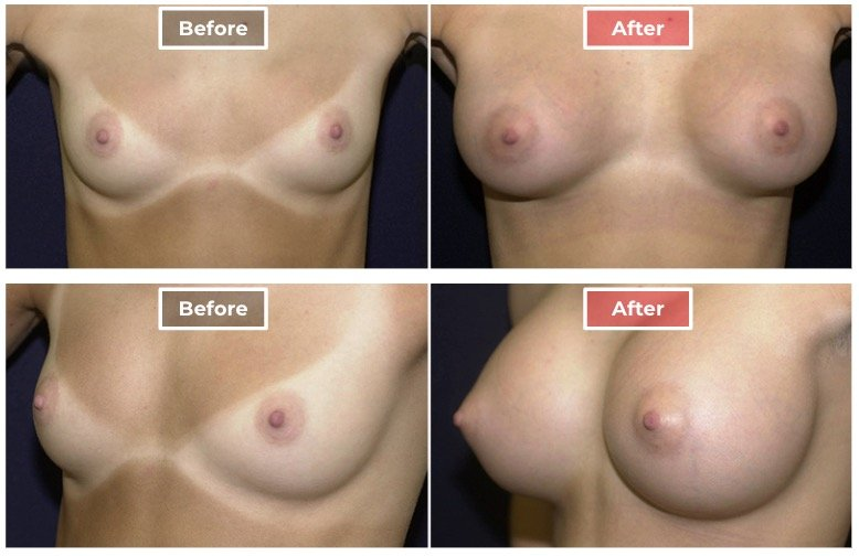Breast Augmentation - before and after - 3