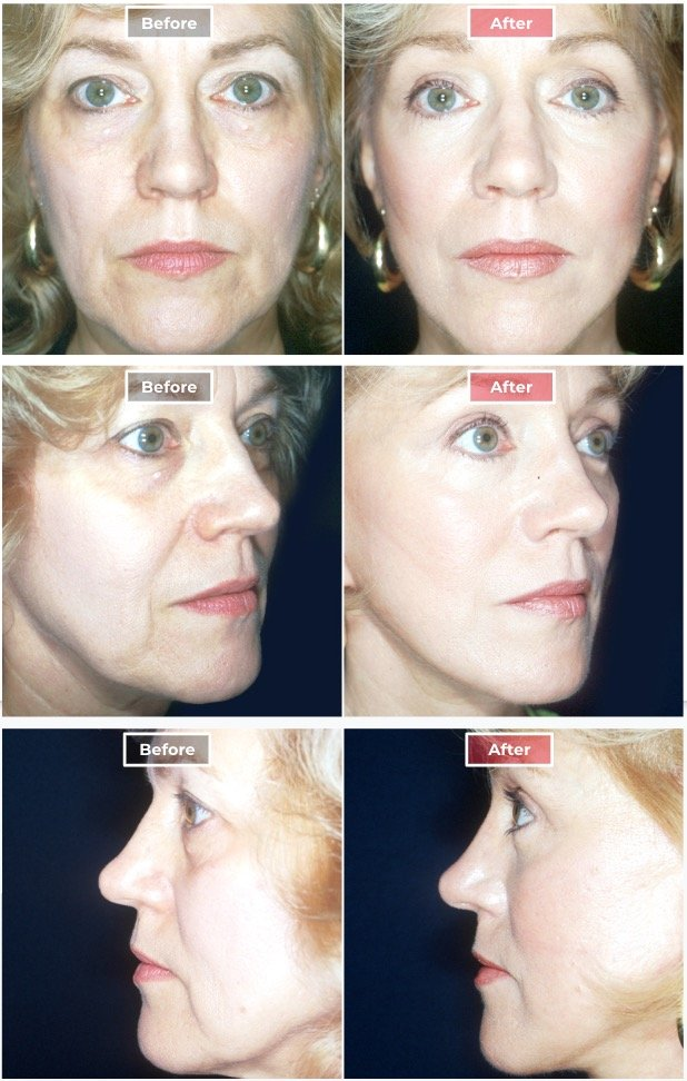 Facelift Surgery   Neck & Face Lifts  before and after
